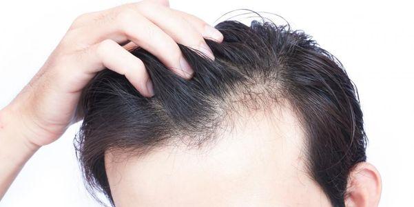 Derramamento de perda de cabelo (eflúvio telógeno) tipos e causas