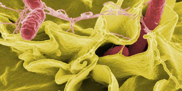 Diferenças entre salmonela e shigella causam sintomas da doença