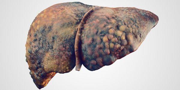 Doença Hepática Alcoólica (Fígado Gorduroso, Hepatite e Cirrose)