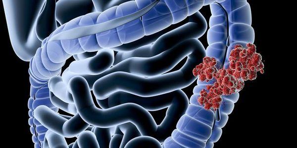 Doença de Crohn versus diferenças de colite ulcerativa e risco de câncer