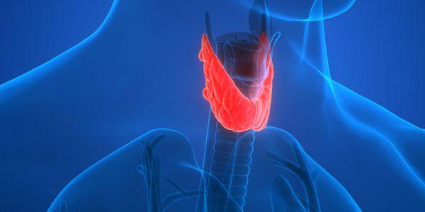 Doença de Graves – Anticorpos da Tiróide e Excesso de Hormônios Tireóideos
