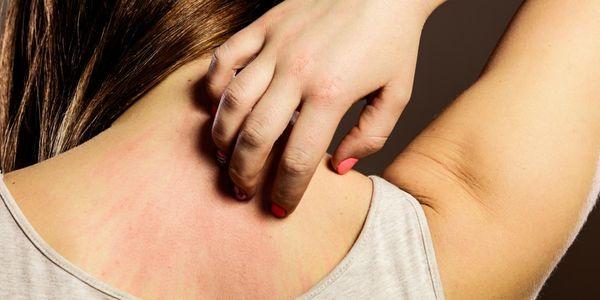 Doenças Alérgicas Comuns, Respiratórias, Pele, Droga, Alergias Alimentares