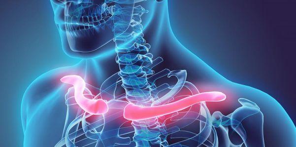 Dor Clavícula – Causas e Tratamento