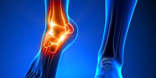 Dor no tornozelo Causas de dor aguda e crônica, Tratamento