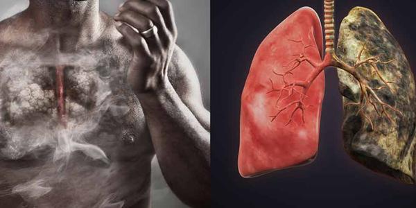 Enfisema (Pulmão do Fumante) De Início a Tarde, Tipos, Duração de Fumar