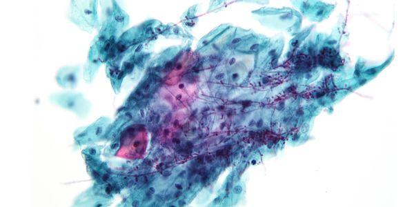 Envenenamento por Anticongelante em Humanos – Sinais e Sintomas