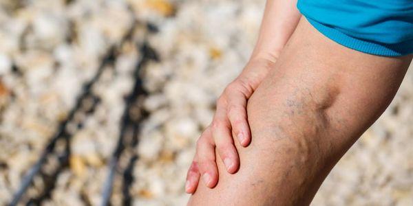 Estase venosa nos sintomas das pernas com imagens de eczema e úlcera