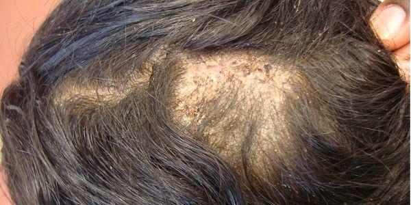 Favus (fungo de cabeça grave) causas, sintomas, tratamento