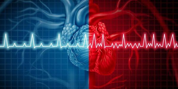 Fibrilação Atrial (Quivering Heart) Causas, Sintomas, Tratamento