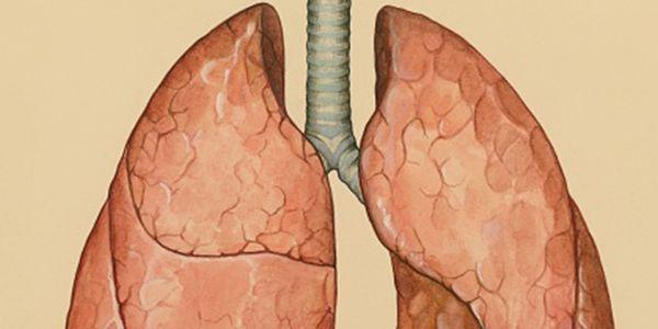 Fluido ao redor dos pulmões – tipos e causas de efusões pleurais