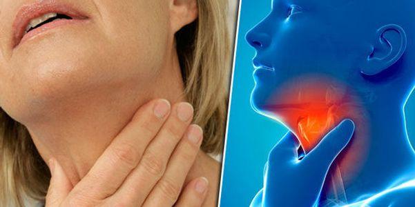 Garganta Inflamada Crônica – Causas, Sintomas de Garganta Inflamada Persistente