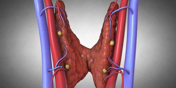 Glândula Paratireóide Hiperativa – Tipos, Causas e Sintomas