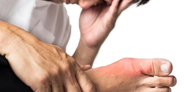 Gout Facts And Myths Todo Sofredor Deve Saber