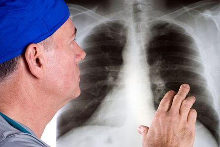 Guia de raios-X do tórax, anormalidades do pulmão e doenças cardíacas