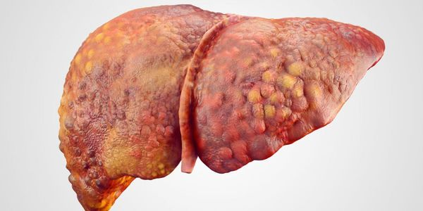 Hipertensão portal (pressão alta na veia ao fígado)