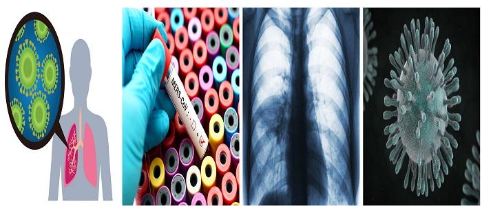 Infecção pelo Vírus da Síndrome Respiratória do Oriente Médio MERS