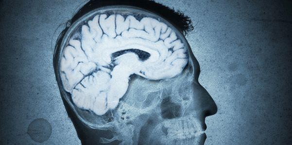 Infecção por parasitas cerebrais do rato (Angiostrongylus) em seres humanos