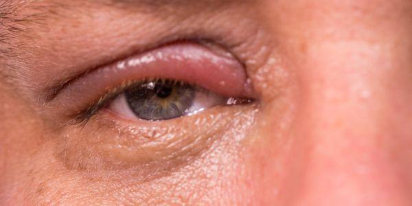 Inflamação da pálpebra (blefarite)