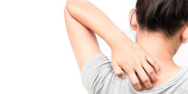 Irritação da pele – causas, sintomas, tratamento e prevenção