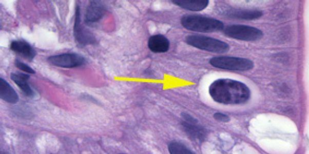 Isosporíase (Infecção por Isospora belli)