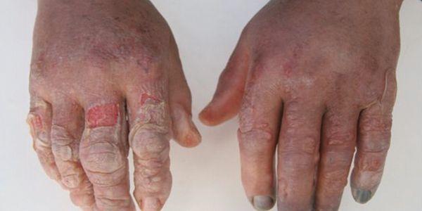 Lesão Fria (Dano Congelante e Não-Congelante)