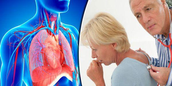 Nódulo Pulmonar – Causas de Nódulos no Pulmão