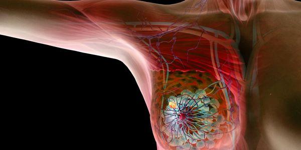 Nódulos mamários Diferentes tipos de massa mamária