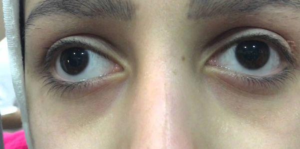 Nistagmo (movimentos anormais dos olhos) Tipos, Vídeo, Causas