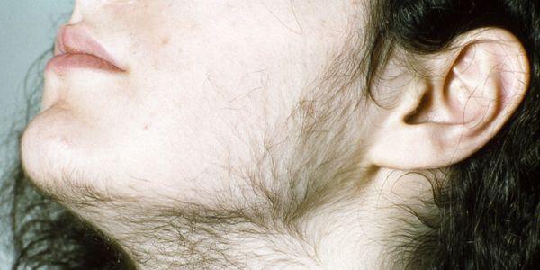 O que é hipertricose Crescimento excessivo de pêlos corporais