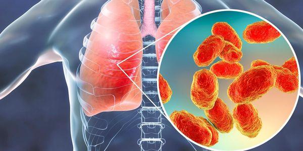 O que é pneumonia Infecção Pulmonar, Doença Inflamatória
