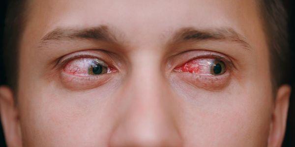 """Olho vermelho crônico da lente de contato, infecção dos """"olhos cor-de-rosa"""""""
