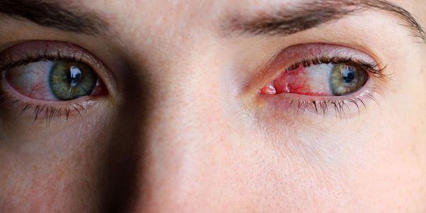 Olhos Inchados – Causas de Inchaço do Olho e Tratamento