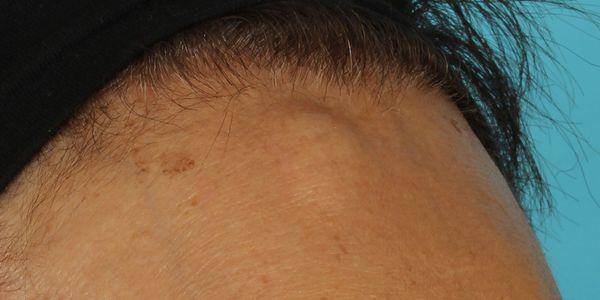 Osteoma Cutis (crescimento ósseo na pele)