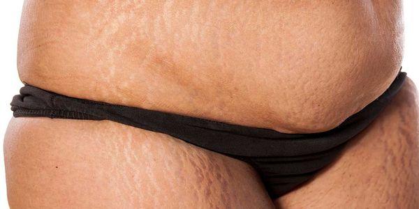 Pele escura ao redor da cintura (hiperpigmentação) faz com que