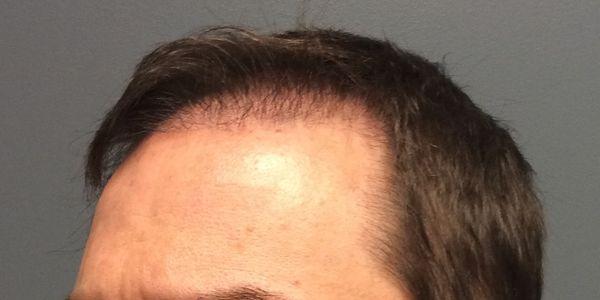 Perda de cabelo desigual (Alopecia Areata) tipos, causas e imagens