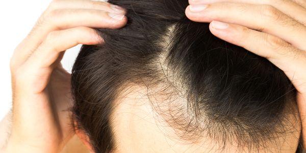 Perda de cabelo do couro cabeludo – causas de calvície em homens e mulheres