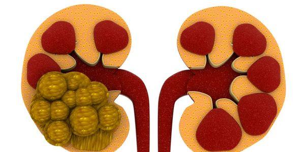 Prevenção de pedra nos rins de cálcio – Vitamina B6, D Suplementos
