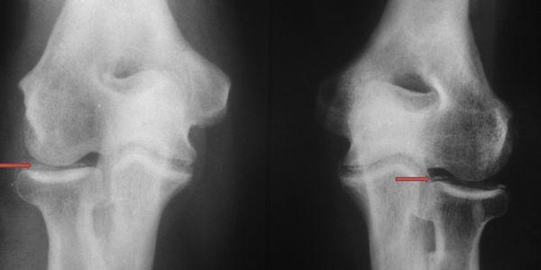 Pseudogota e Doença de Deposição de Pirofosfato de Cálcio