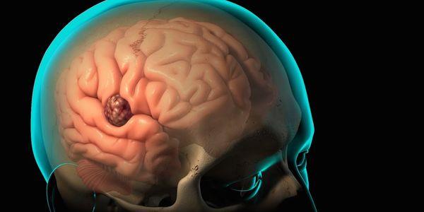 Pus Around The Brain (Subdural Empyema) Causes and Symptoms
