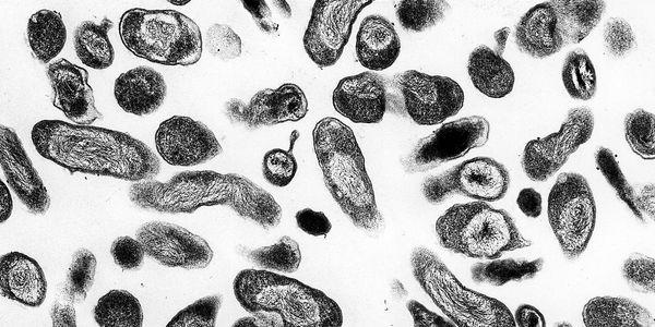 Q Febre (Infecção por Coxiella burnetii)