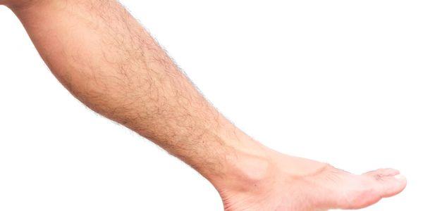 Queda de cabelo nas pernas (uma ou ambas), causas e tratamento