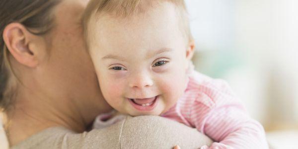 Síndrome de Down bebês fatos fotos características e diagnóstico