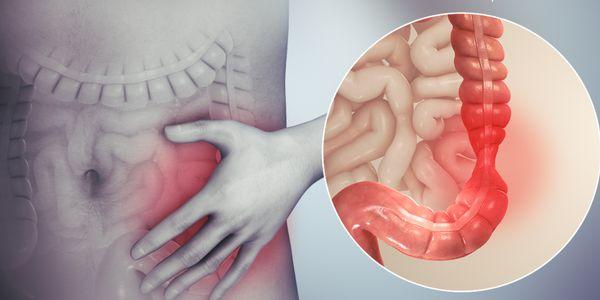 Síndrome do Cólon Irritável (SII) vs Doença Inflamatória Intestinal (DII)