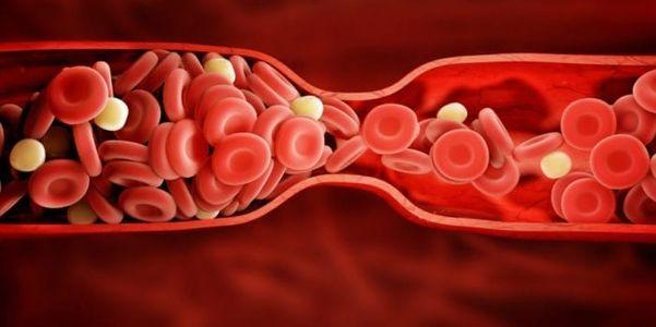 Sangue mortal coágulos (coração, pulmões, pernas, cérebro) Sintomas e prevenção