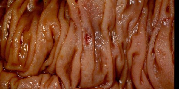 Sintomas de angiodisplasia de vasos sanguíneos aumentados de cólon