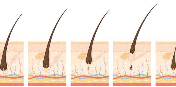 Taxa de Crescimento de Cabelo e Fases (Anágena, Catágena, Telógena)