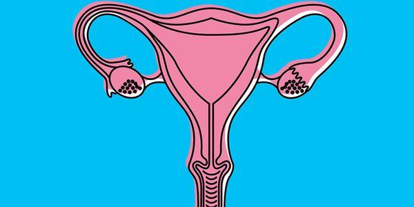 Tipos de câncer de ovário – bilateral, unilateral