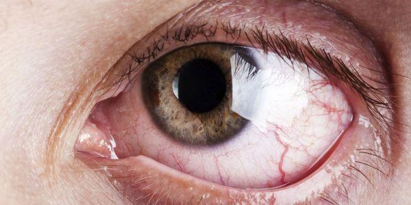 Um lado rasgando o olho aguado, tratamento