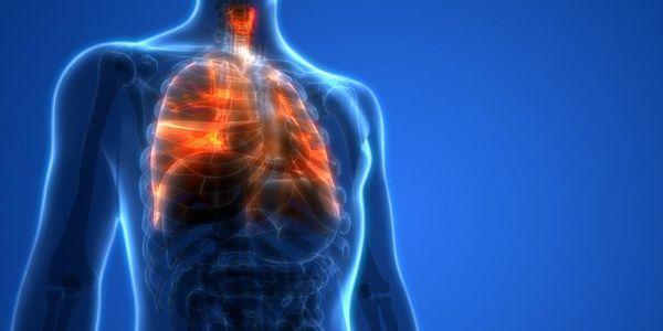 abscesso miocárdico pus no músculo da parede do coração