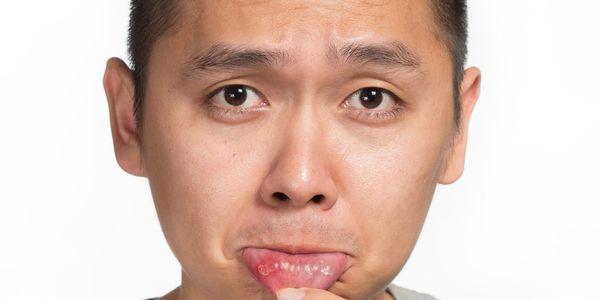 aftas recorrentes crônicas na boca